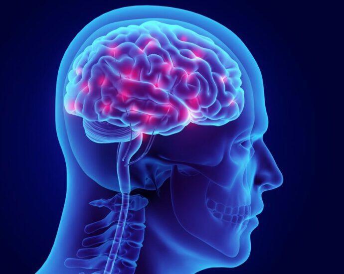 Neurological Damage